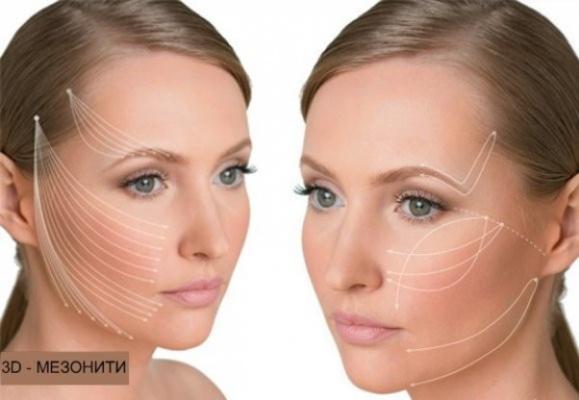 Безоперационная подтяжка лица 3D-мезонитями