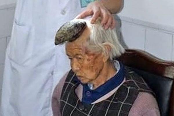 У пожилой китаянки на голове вырос 13-сантиметровый рог