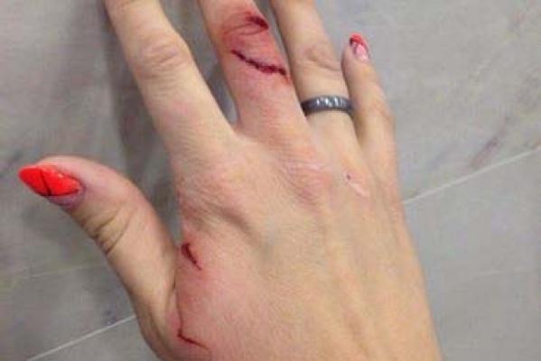 Дом.ru прокомментировал инцидент с квадрокоптером, который поранил руку екатеринбурженки: «За всю практику это первый случай»