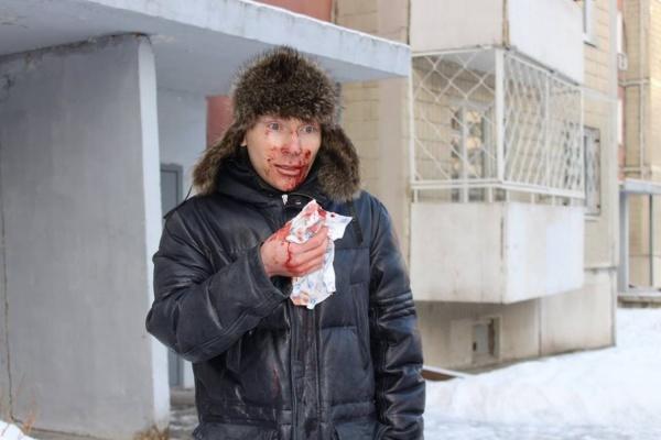 «Угрозы поступали. Но чтобы так, посреди белого дня». Помощника свердловского депутата жестоко избили и ограбили